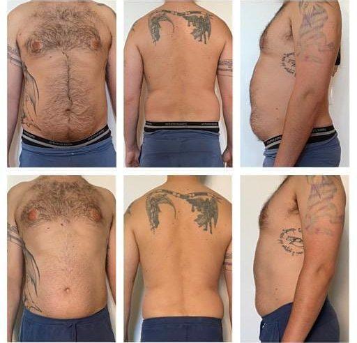 trattamento parziale addome schiena 12 sedute 30 minuti